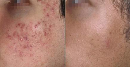 Комедоны на лице – причины появления, виды и методы лечения